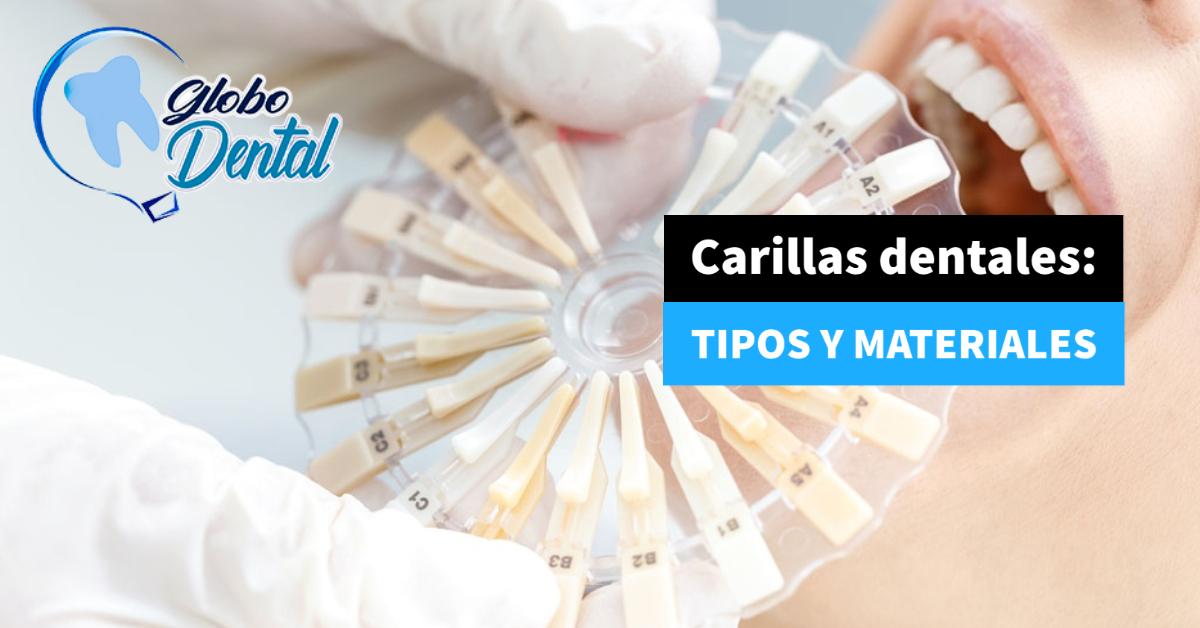 Carillas dentales: Tipos y materiales