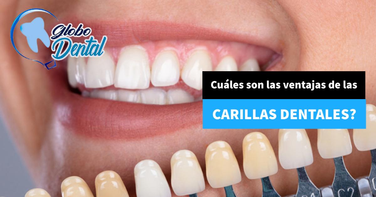 Cuáles son las ventajas de las Carillas Dentales?