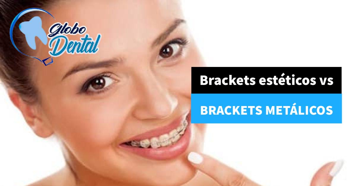 Brackets estéticos vs Brackets metálicos