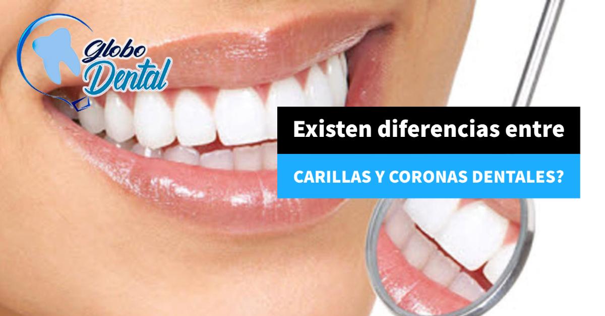 Existen diferencias entre Carillas y Coronas dentales?