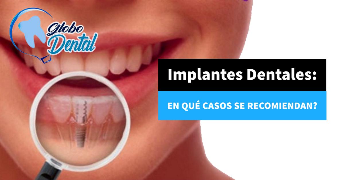 Implantes Dentales: En qué casos se recomiendan?