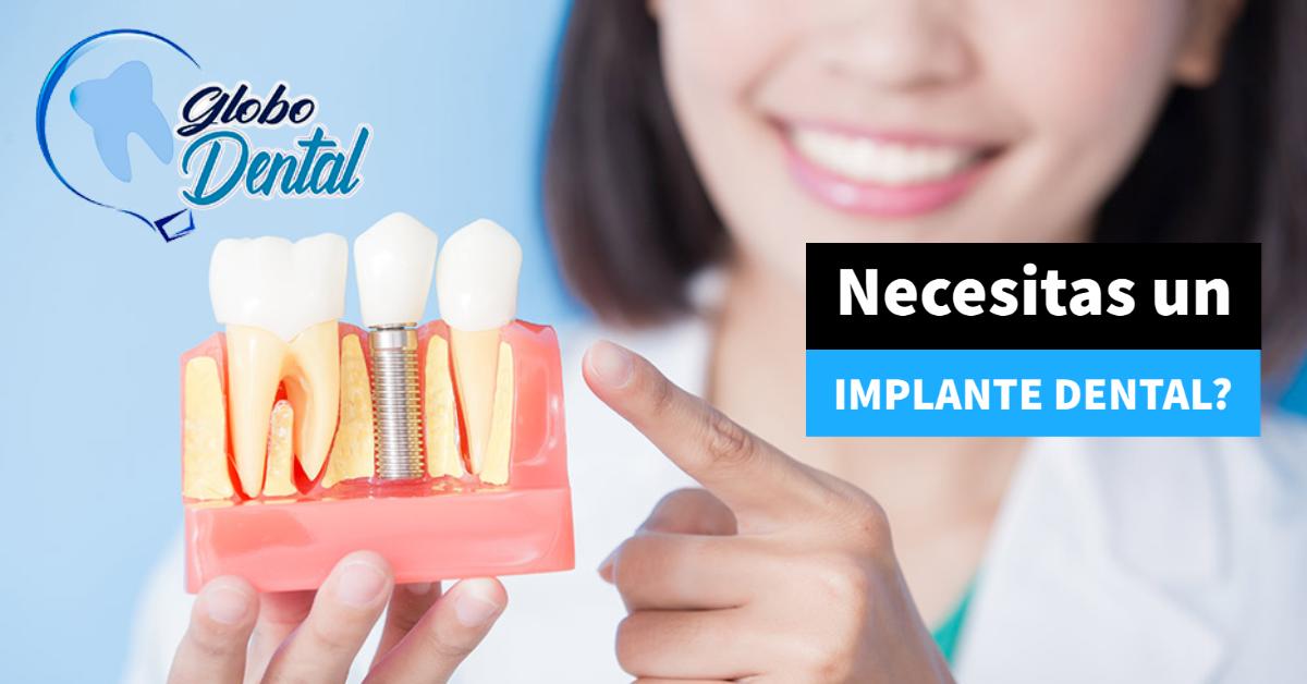 Necesitas un Implante Dental?