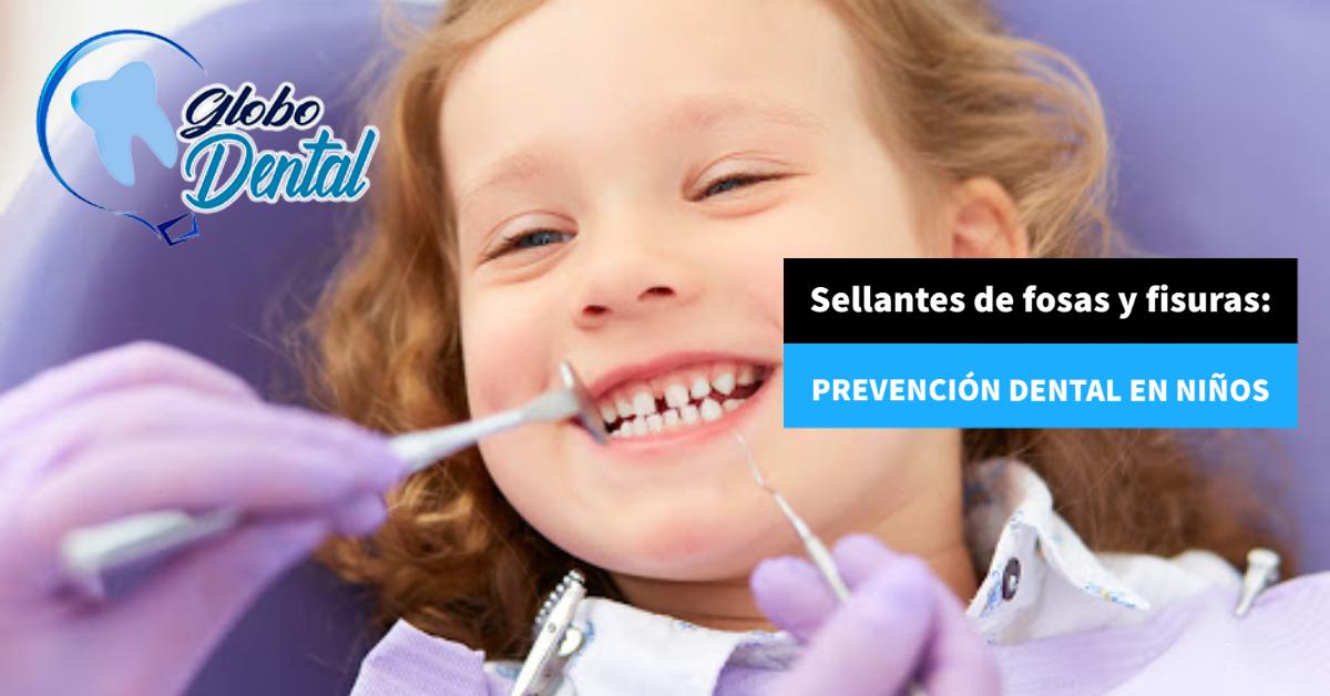 Sellantes de fosas y fisuras: Prevención dental en niños