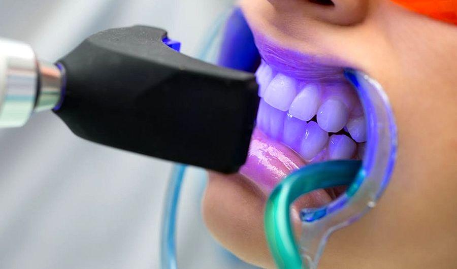 Paciente de blanqueamiento dental