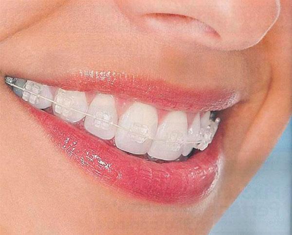 Ortodoncia estética