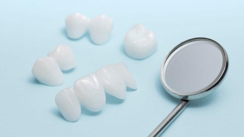 Carillas dentales vs Coronas dentales