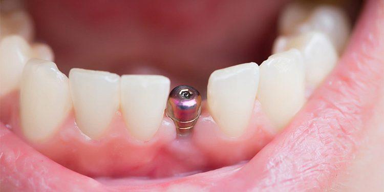 Implante dental o tornillo