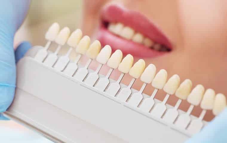 Eligiendo color de Carilla dental