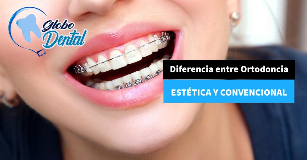 Diferencia entre Ortodoncia Estética y Convencional