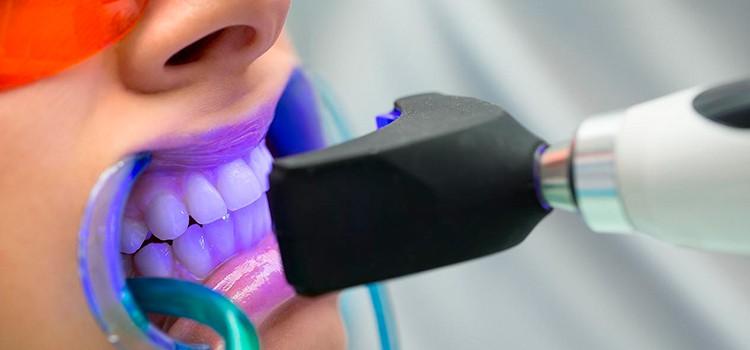 Blanqueamiento dental con luz
