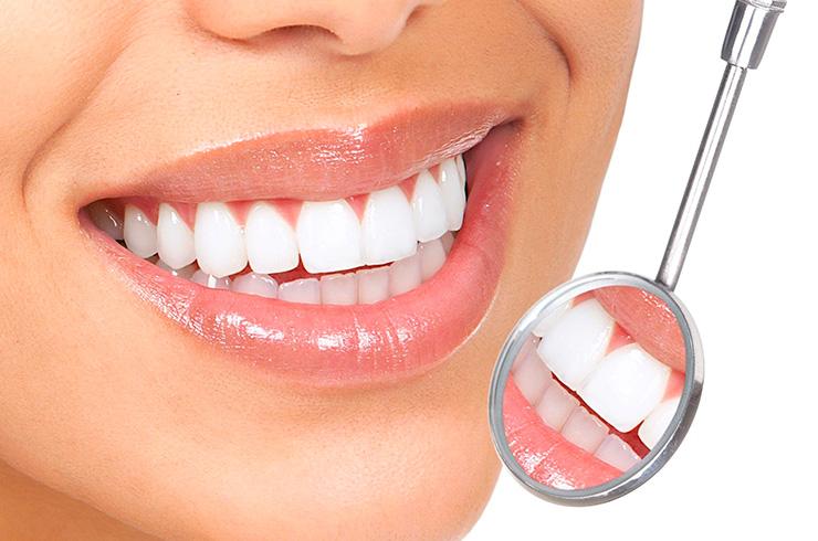 sonrisa con implantes