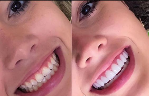 Paciente satisfecha con carillas dentales