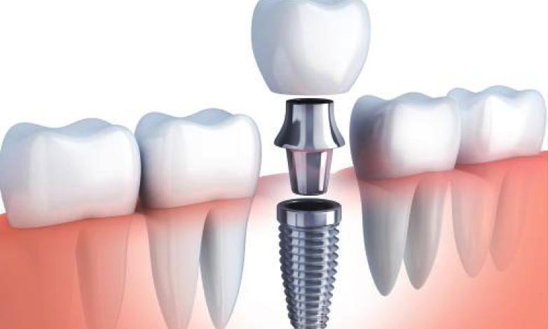 Etapas de un implante dental
