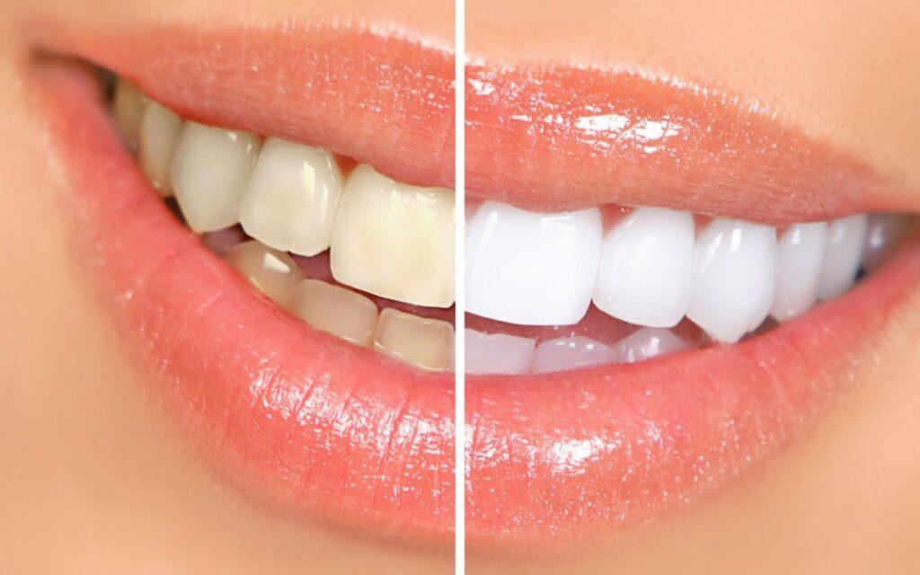 Procedimiento de blanqueamiento dental