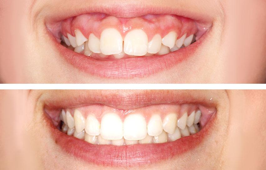 Antes y después paciente con ortodoncia