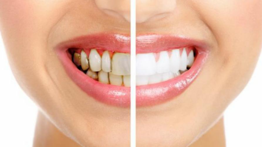 Paciente con periodontitis