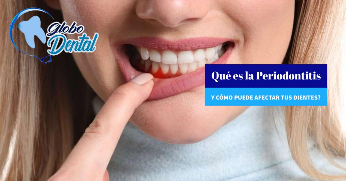 Qué es la Periodontitis y cómo puede afectar tus dientes?