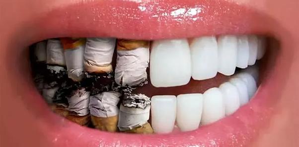 Imagen ilustrativa de los dientes de un fumador