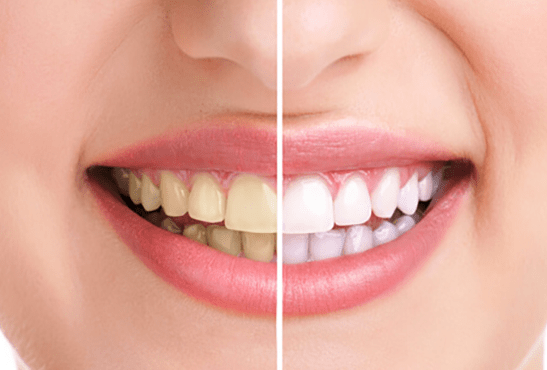 Tinción de los dientes por fumar