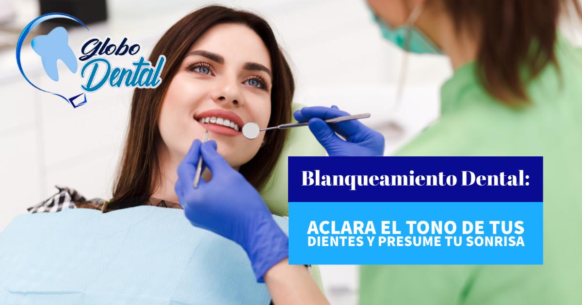 Blanqueamiento Dental: Aclara el tono de tus dientes y presume tu sonrisa