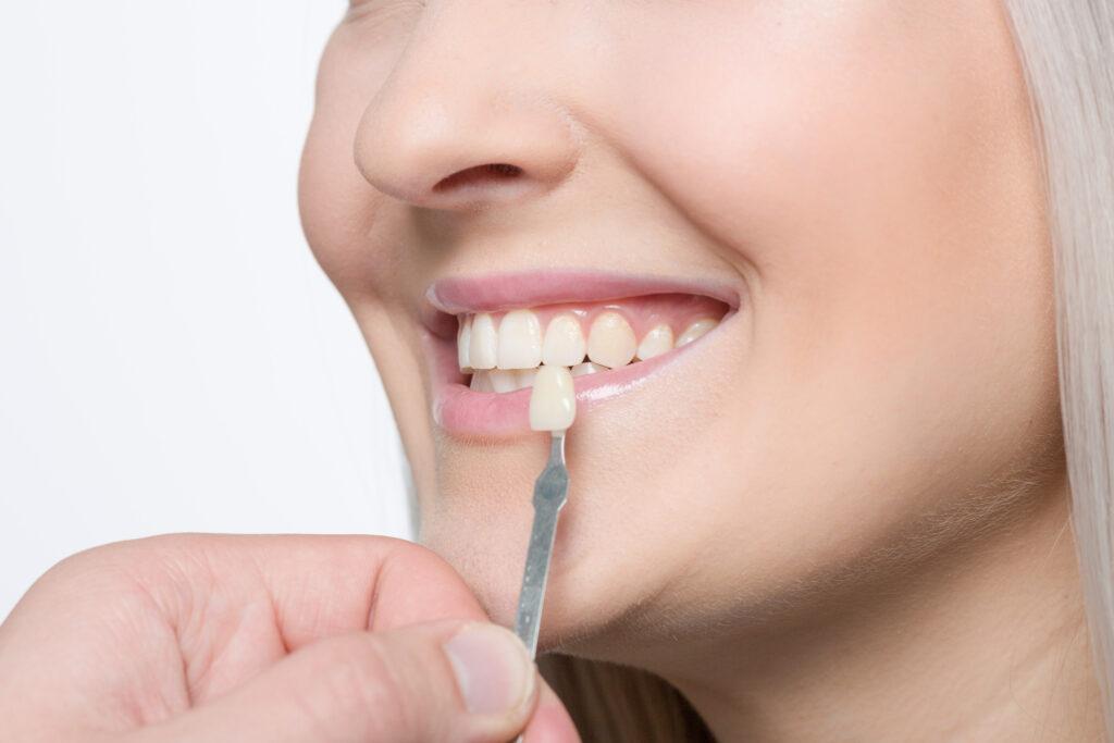 Paciente con carillas dentales
