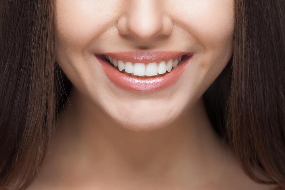 Sonrisa de mujer con procedimiento de blanqueamiento dental