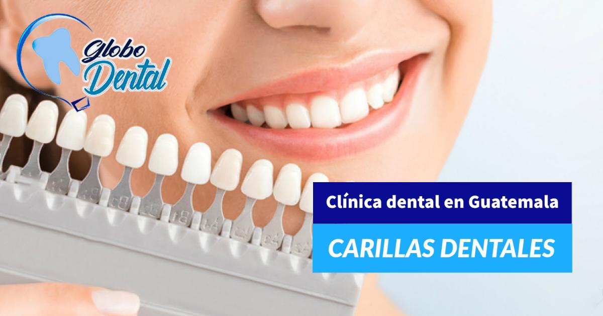 Clínica dental en Guatemala-Servicio de Carillas Dentales en adultos