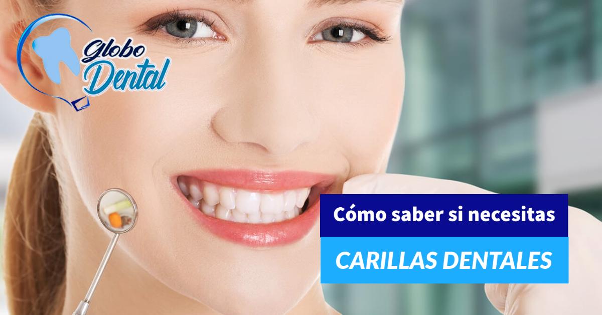 Cómo saber si necesitas carillas dentales
