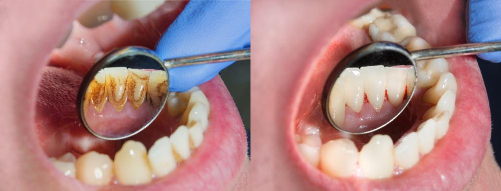 Dientes con sarro vs dientes limpios