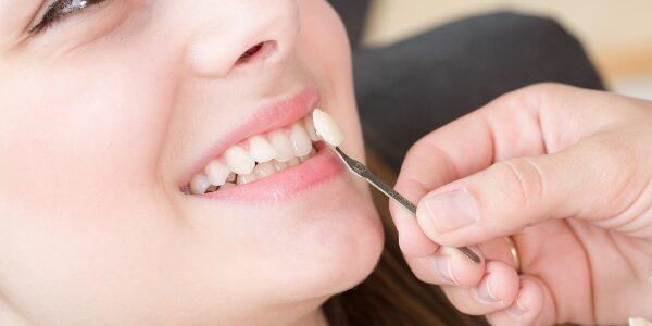 Paciente con dientes desalineados