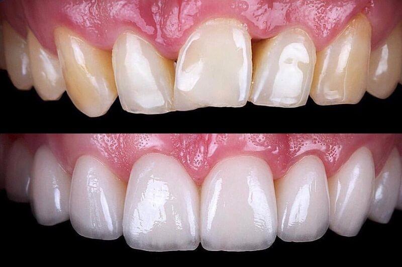 Antes y después con carillas dentales