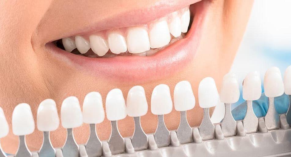 Muestrario  de color para carillas dentales