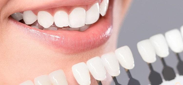 Carillas dentales aplicadas