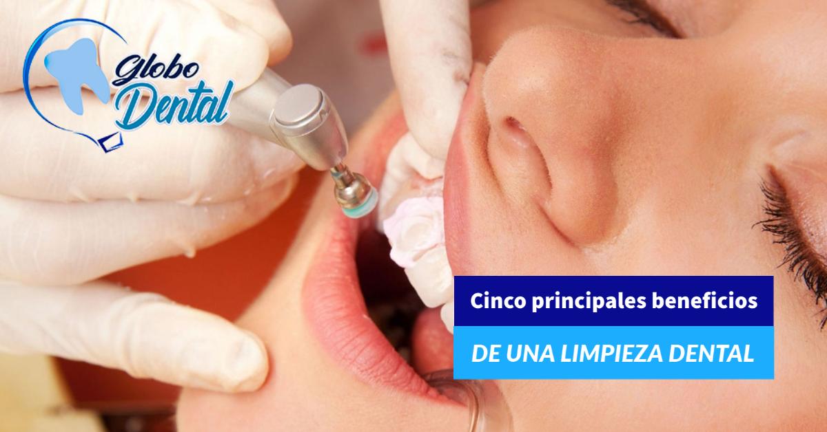 Cinco principales beneficios de una limpieza dental