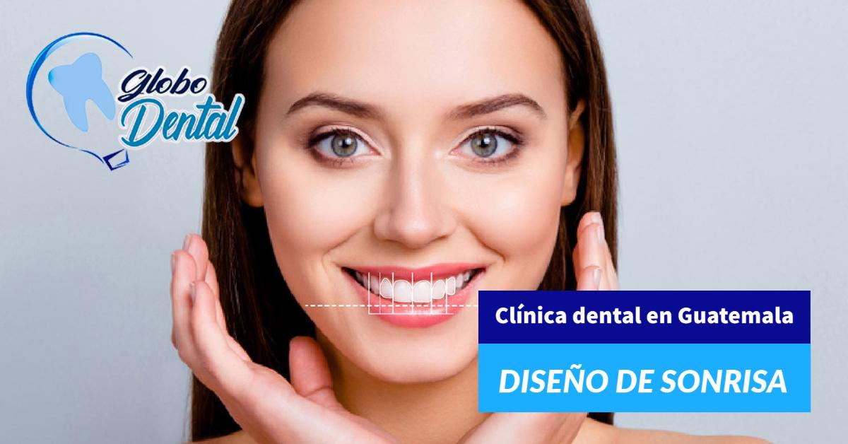 Clínica dental en Guatemala-Servicio de Diseño de Sonrisa