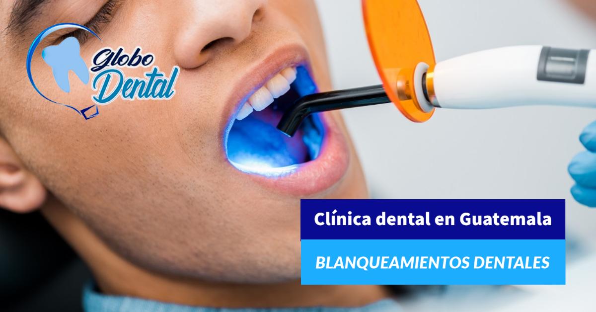 Clínica dental en Guatemala-Servicio de Blanqueamientos Dentales