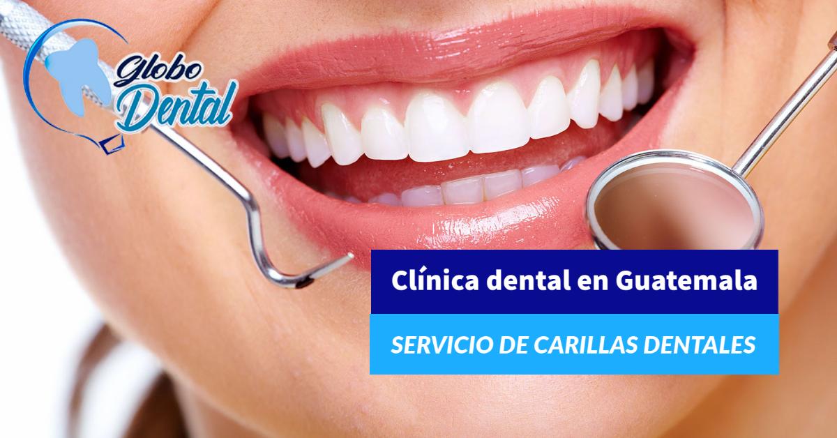 Clínica dental en Guatemala-Servicio de Carillas Dentales estéticas
