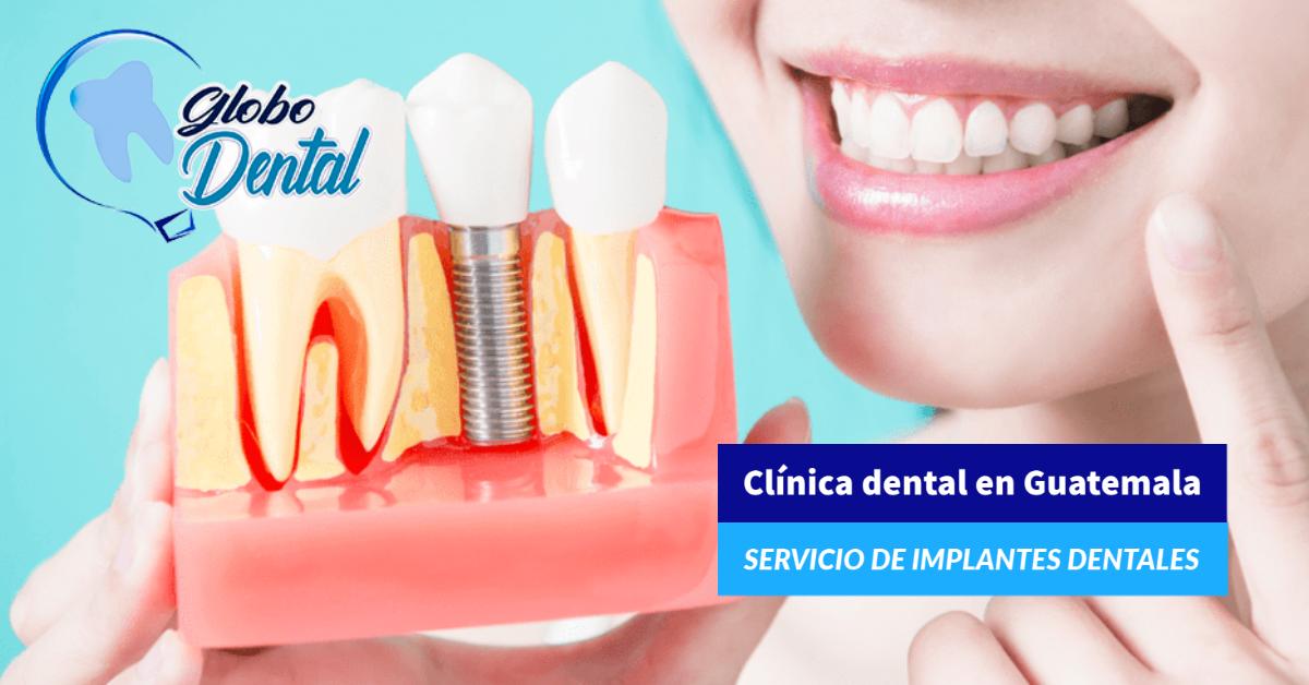 Clínica dental en Guatemala-Servicio de Implantes Dentales tratamiento