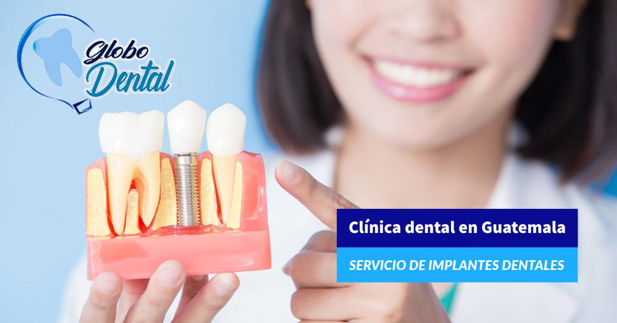 Clínica dental en Guatemala-Servicio de Implantes Dentales