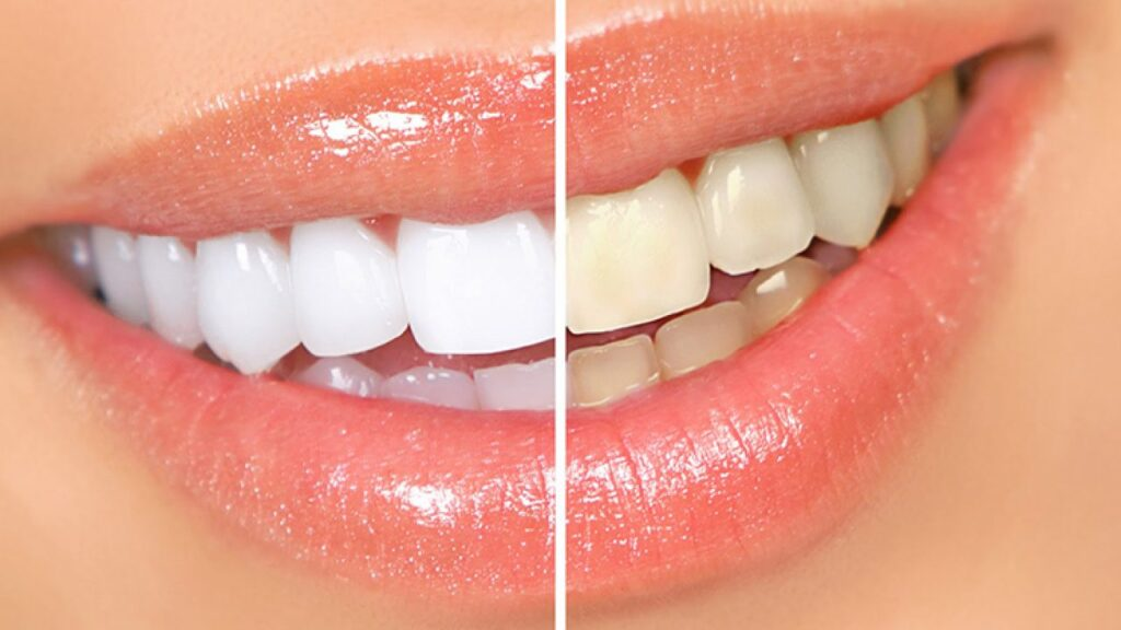 Procedimientos de Blanqueamientos Dentales