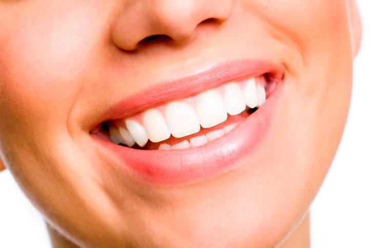 Diseño de sonrisa en una paciente femenina.