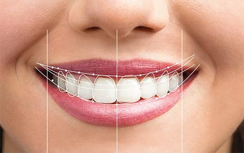 Diseño de sonrisa en paciente femenino